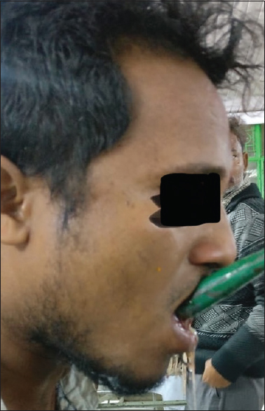 Figure 2: Lateral view of the patient showing the iron rod projecting from the mouth